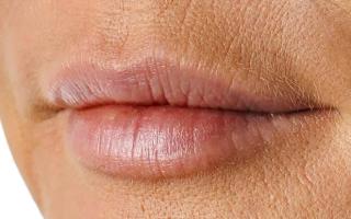 Как лечить морщины вокруг рта?