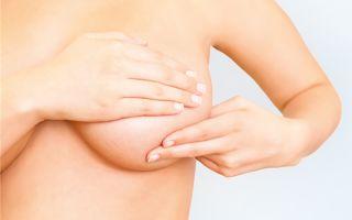 Выбор специалиста по маммопластике