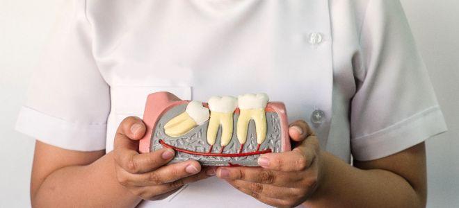 Удаление зубов мудрости в Бутово, Марьино, Подольске