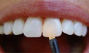 Диоксид циркония – «белое золото» стоматологии
