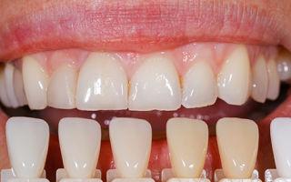 Как делают художественную реставрацию передних зубов