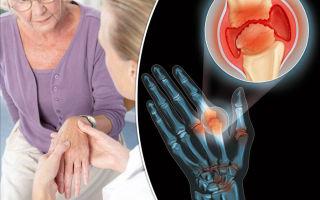 Подагрический артрит: причины возникновения, лечение, профилактика