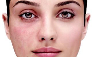 Розацеа или купероз — причины и борьба с болезнью