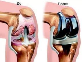 Анестезия при операции по замене коленного сустава чем снять воспаление суставов