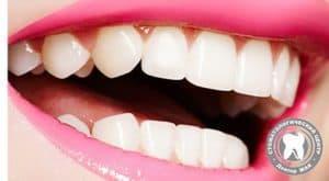 Красивая улыбка за счёт эстетической реставрации зубов