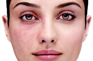 Купероз - хроническое дерматологическое заболевание