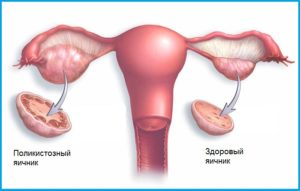 Синдром поликистоза яичников