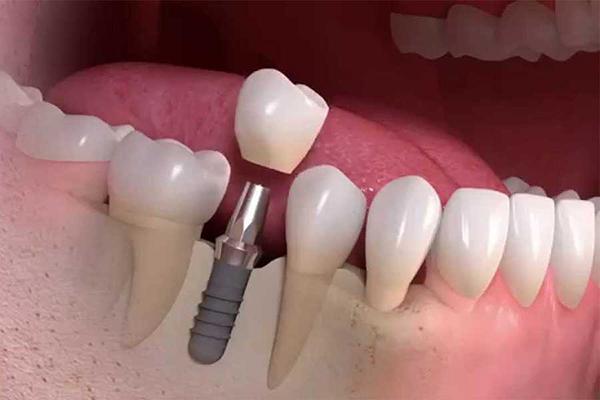 О протезировании зубов