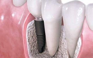 Имплантация зубов – что нужно знать
