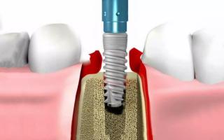 Имплантация зубов дорогое удовольствие, но оно того стоит
