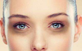 Гель на основе ботулинического токсина борется с темными кругами вокруг глаз