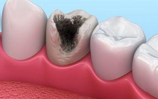 Осложнения кариеса — пульпит, периодонтит, гранулема