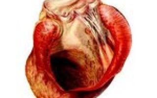 Аневризма сердца: причины, признаки, симптомы, лечение