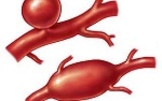 Аневризма аорты — причины, симптомы и лечение аорты