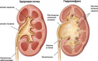 Что такое уретерегидронефроз