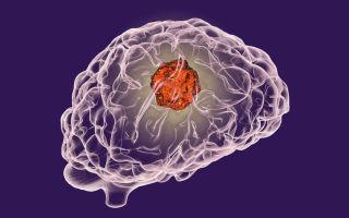 Какие симптомы могут указывать на опухоль головного мозга