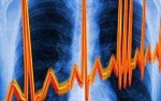 Аритмия: виды, причины, признаки, симптомы, лечение
