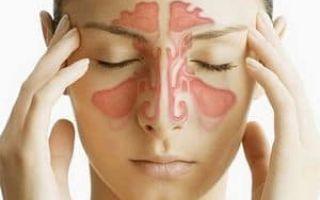 Гаймориты и ангины: симптомы гайморита и ангины
