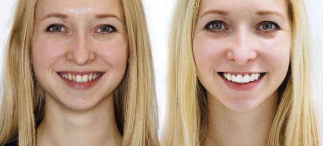 Коронки на зубы, косметика и пластика зубов