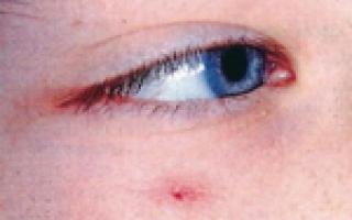 Ангиоматоз: виды, причины, признаки, симптомы, лечение