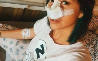 Натали Неведрова перенесла пластическую операцию