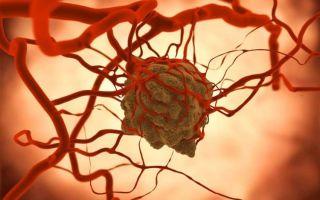 Что такое ангиосаркома